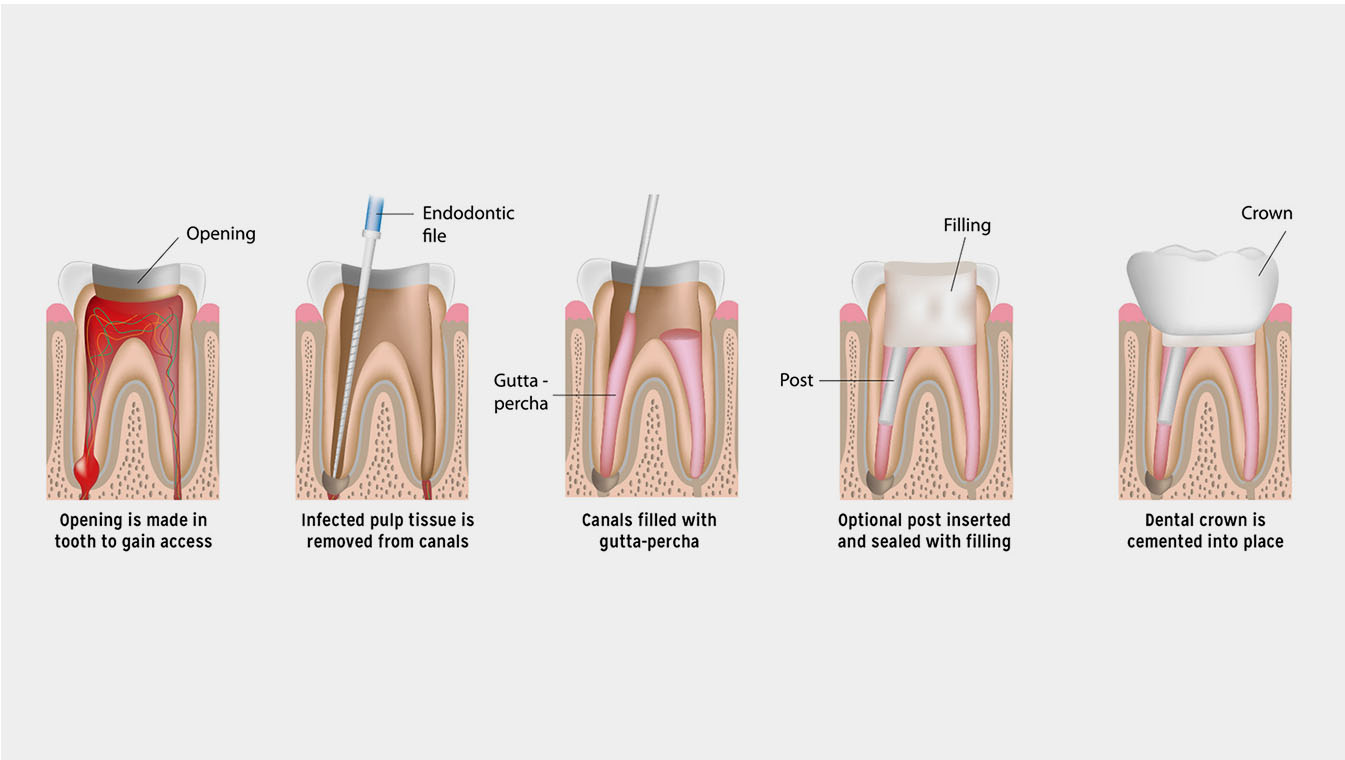 Root Canal | the dental clinic